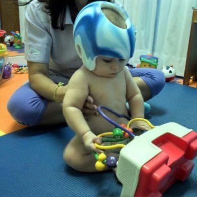 Plagiocefalia e uso de capacete em bebês